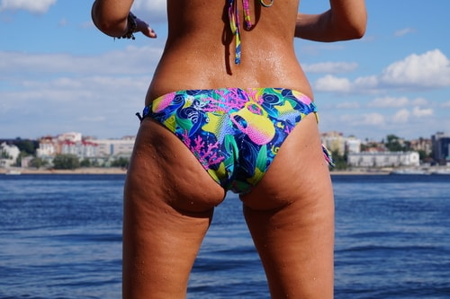 thin woman with cellulite