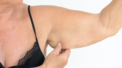 Say Goodbye to Flabby Arms