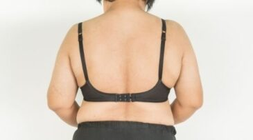 get rid of back fat ft