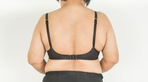 How to Get Rid of Back Fat for Good